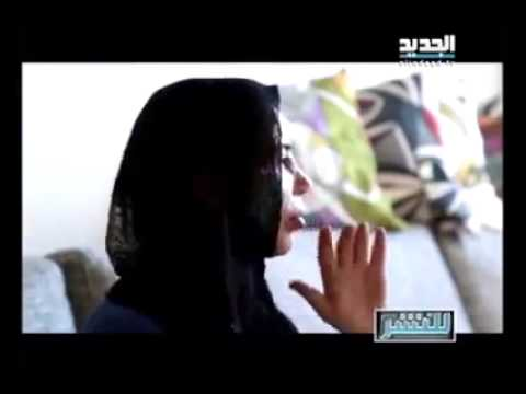 فتاة لبنانية تقع ضحية لعمليات التجميل